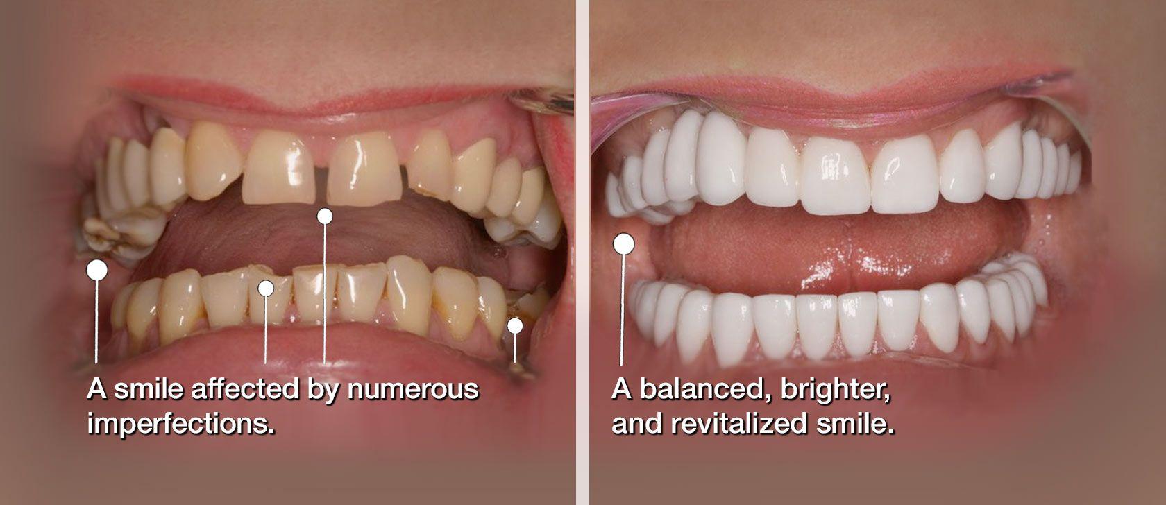 Smile Makeover in Tucson, AZ   Schumer Dental PC